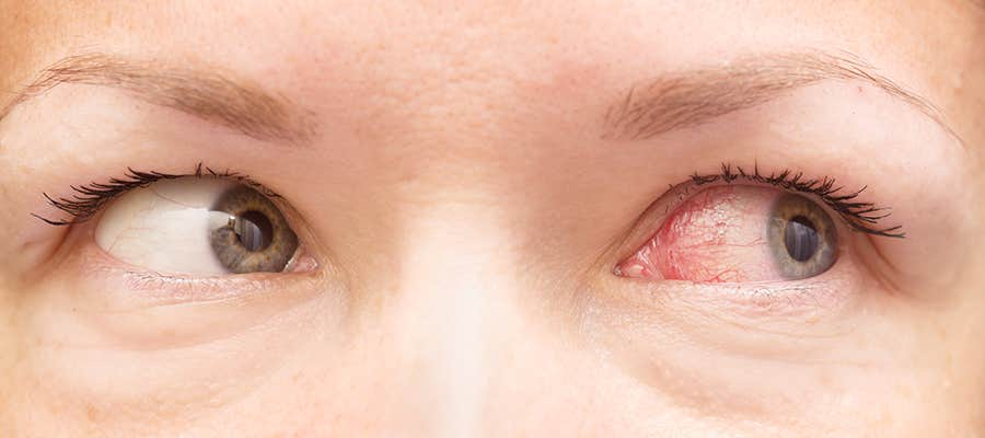Allergies and Itchy Eyes
