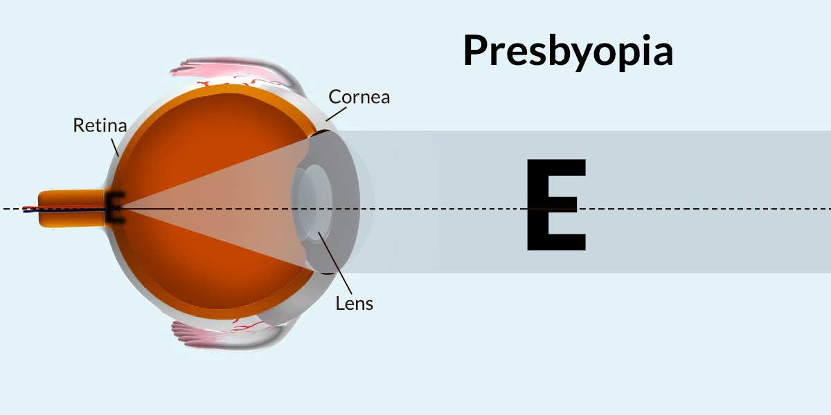 Presbyopia Indications and Symptoms